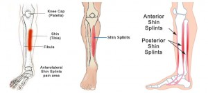 ที่มา: http://www.fleetfeetmobile.com/resources/shin-splints